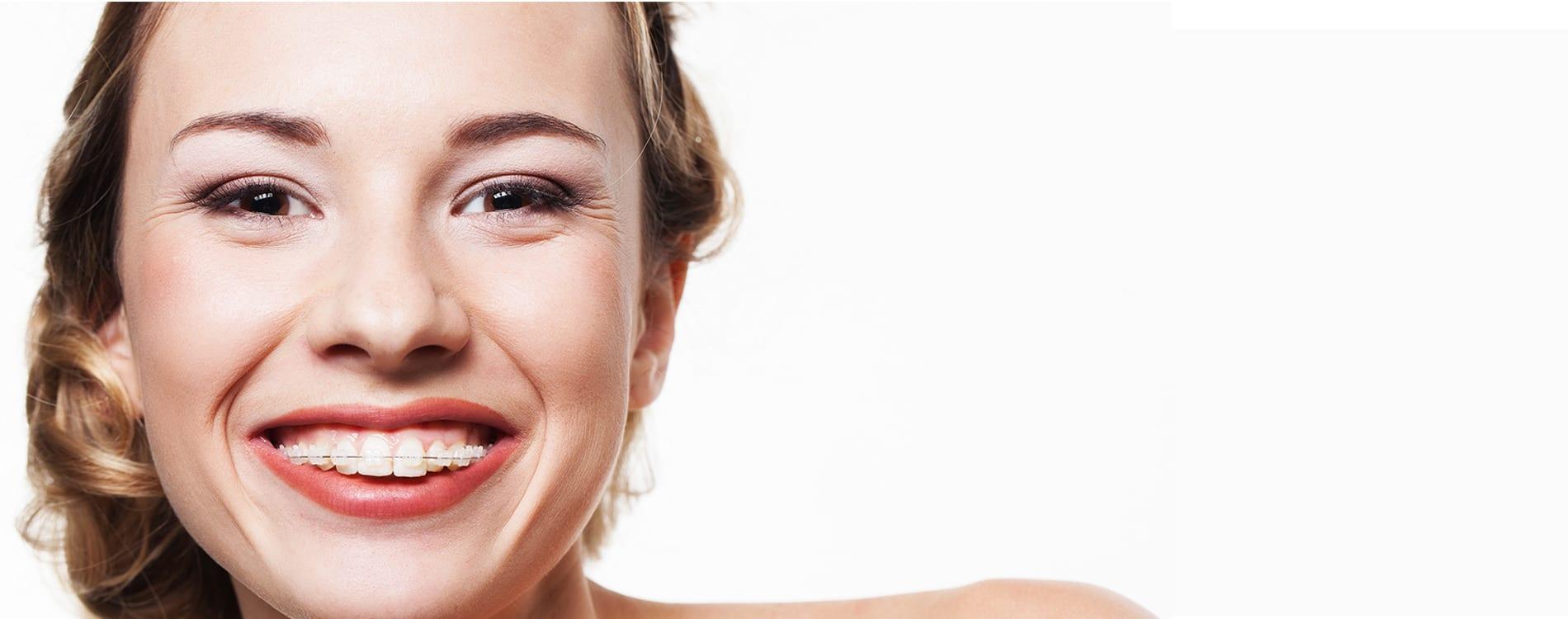 Mujer sonriendo con brackets